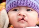 cleft awareness